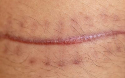 Scars: Definition, Types, Removal, and Treatment