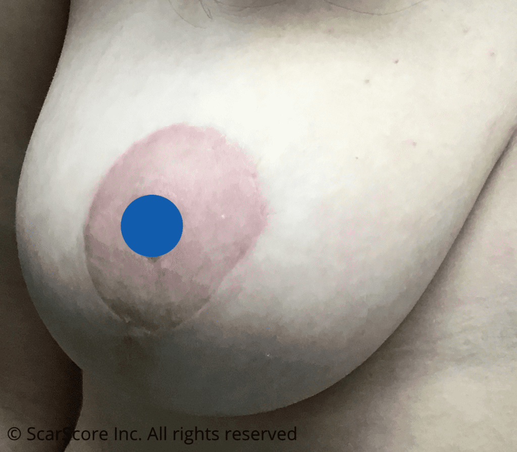 Fine mature breast reduction scars at 6 months
