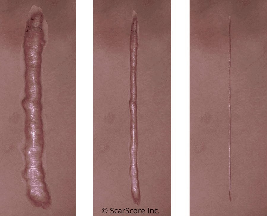 3 variations of human scars differing in thickness and width