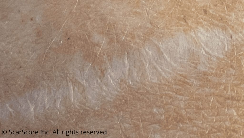 A widespread flat and pale scar of the skin