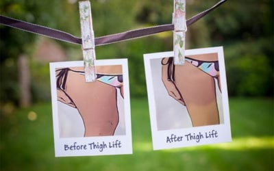 Thigh Lift Before And After: Don't Search Before Reading This