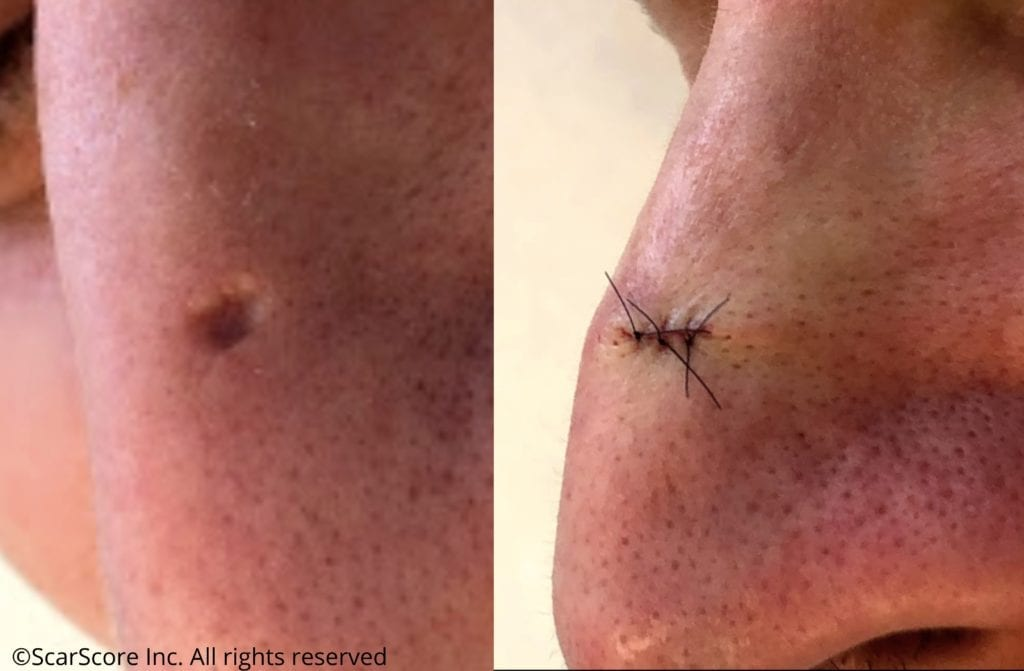 Before and after atrophic scar scar revision surgery results