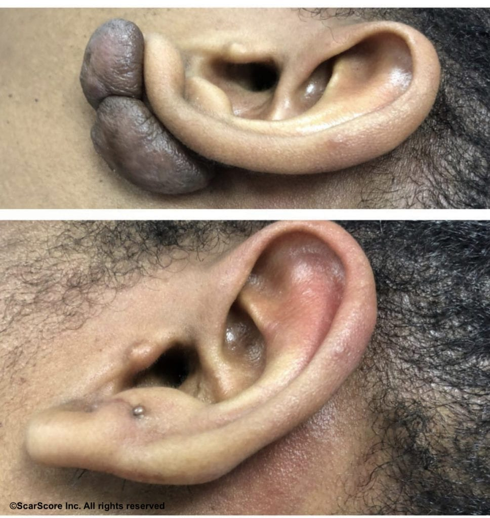 Before and after scar revision results for an earlobe keloid