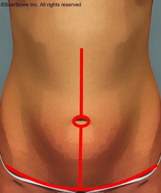 Animation showing vertical tummy tuck scar placement