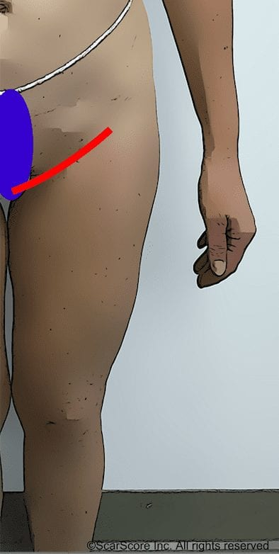 Image showing location of scar for groin approach to thigh lifts