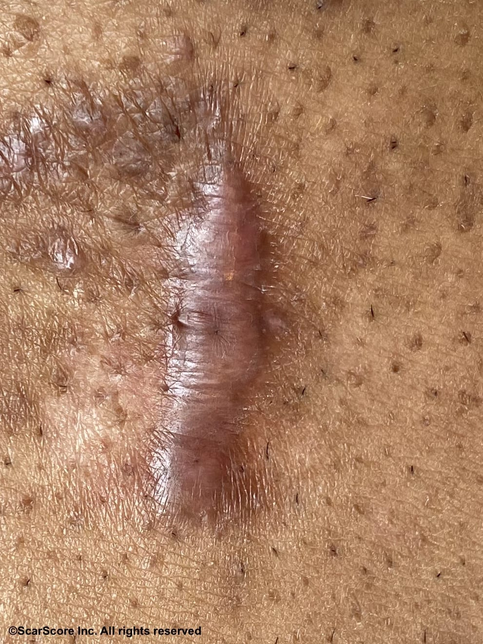 thick hypertrophic keloid scar of the chest