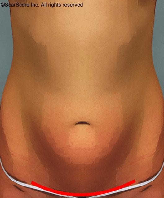 Animation showing mini tummy tuck scar placement