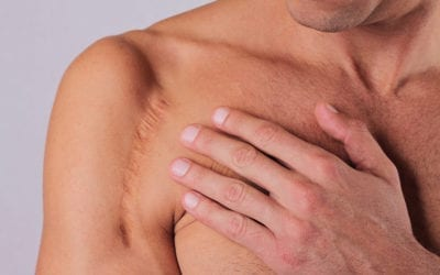 Silicone Sheets For Scars: Top 10 To Match Your Scar's Shape and Length