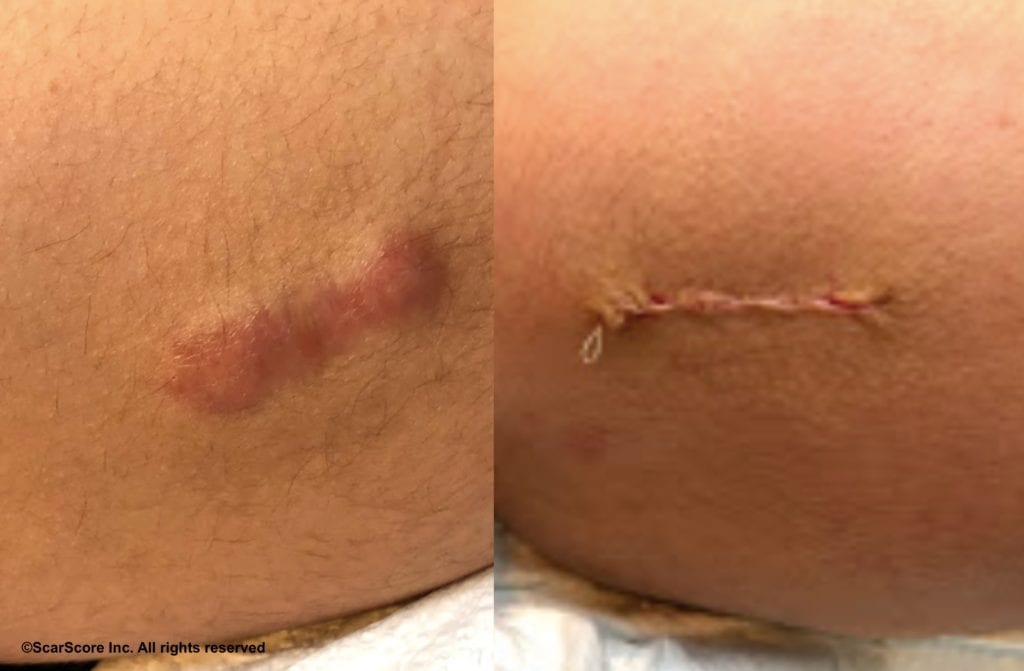 Before and after scar revision of the thigh