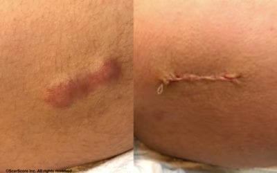 Scar Revision Surgery: Before And After, Costs, Is It Worth It?