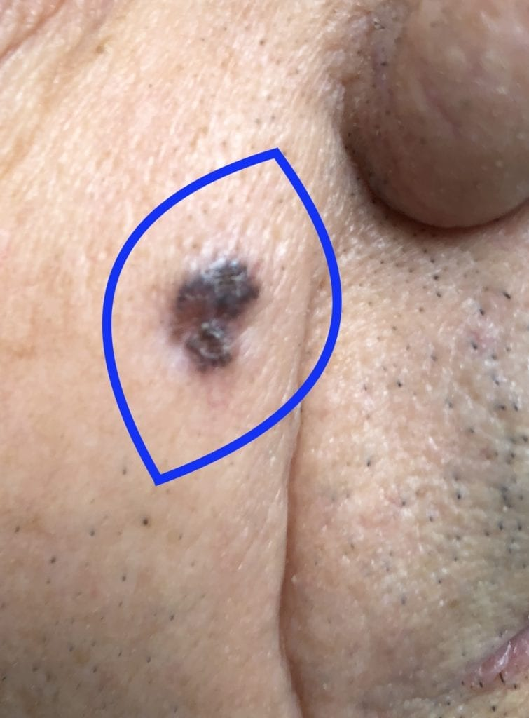 Excision of an abnormal facial mole showing surgical margins