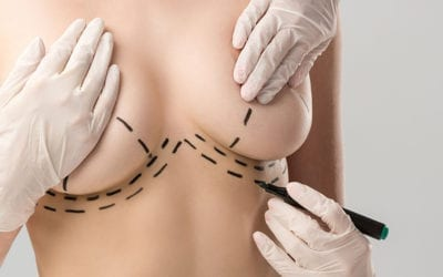 Breast Reduction Scars: What Your Scars Will Look Like