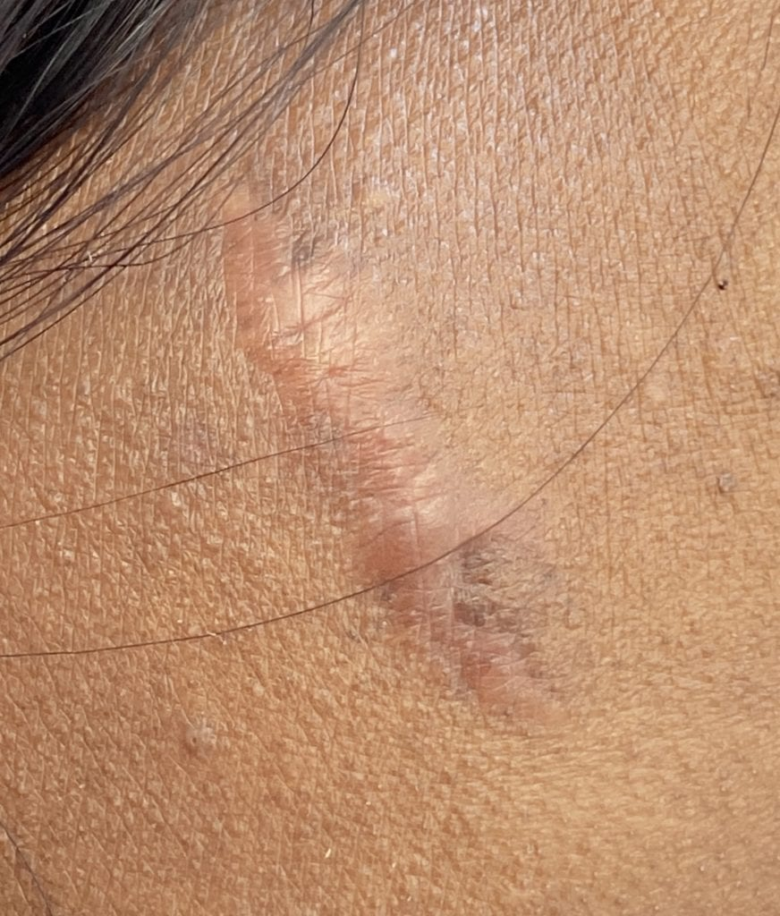 Hypertrophic scar from facial mole removal