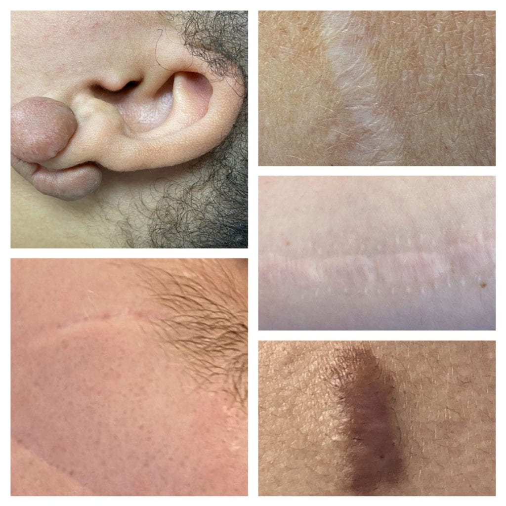 Keloids and other types of scars