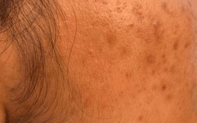 Acne Scars: Treatment, Types, Prevention, Home Remedies