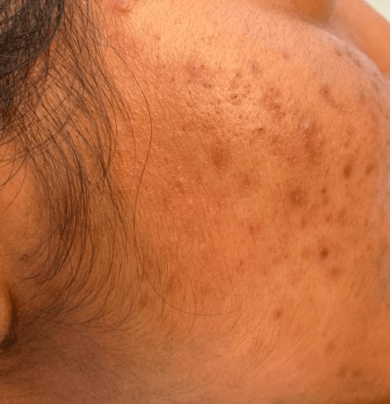image of cheek with moderatelyu severe acne