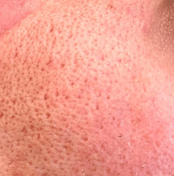 image of ice pick variant of atrophic acne scars