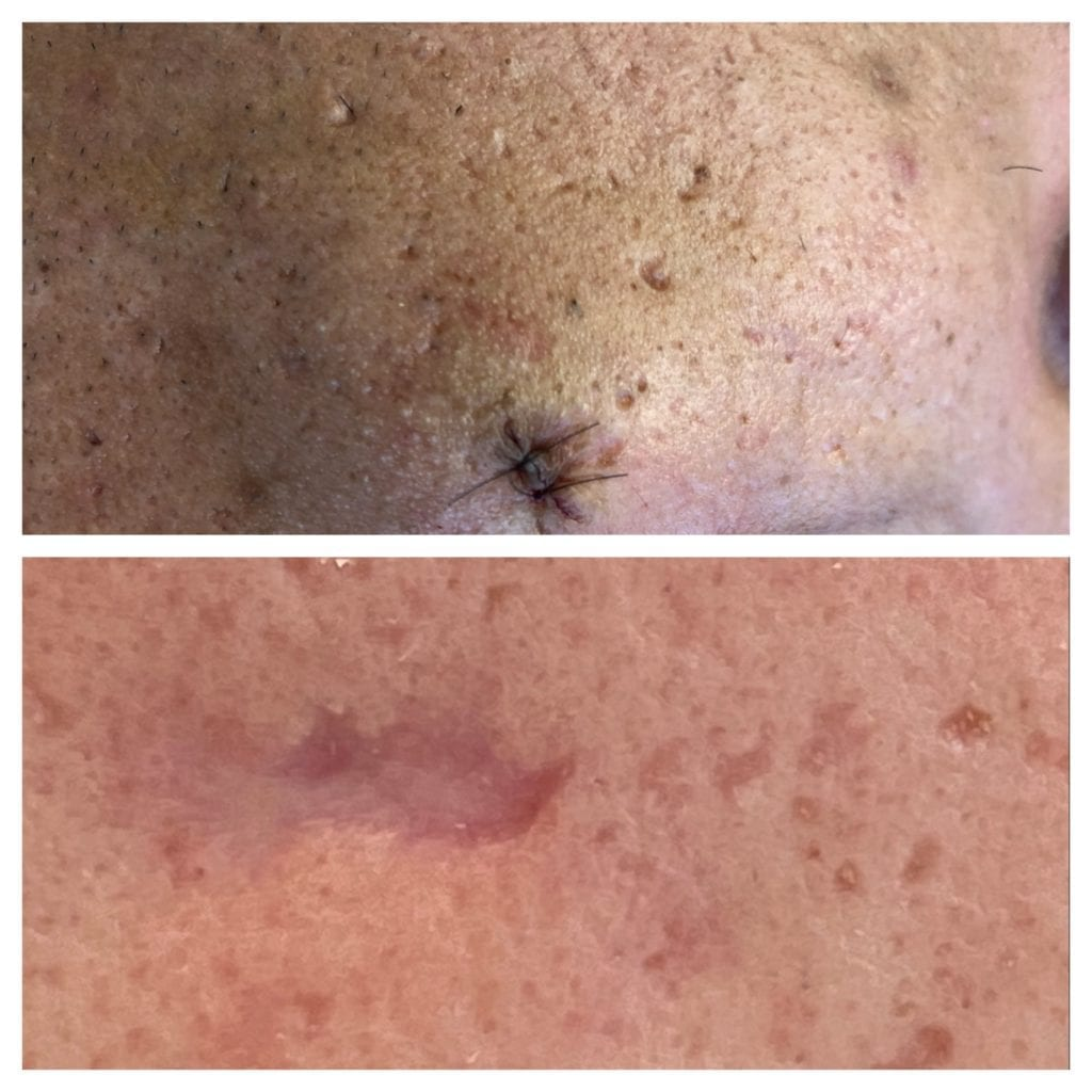 atrophic acne scars can benefit from lasers to remove scars