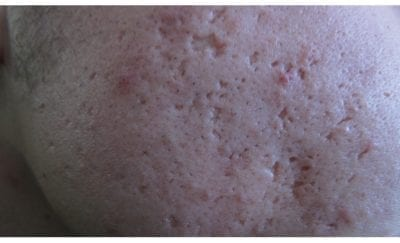 Ice Pick Scars: How To Get Rid Of Them (Easy Read)