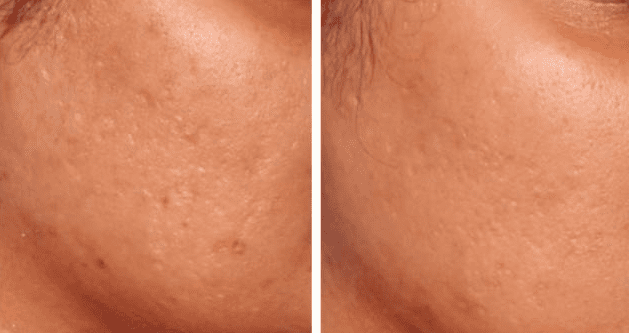PRP for acne scars results