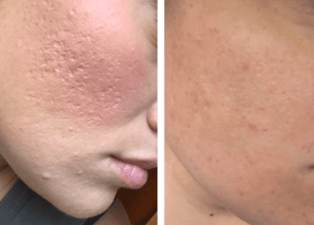 chemical peels for acne scars results