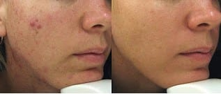 Microdermabrasion for acne scars and hyperpigmentation