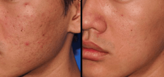 micro needling for acne results