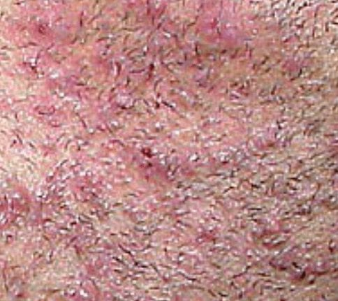 Pseudofolliculits barbae can lead to ingrown hair scars
